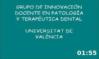 Acceso endodóncico al segundo molar maxilar