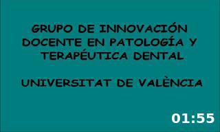 Acceso endodóncico al incisivo central maxilar