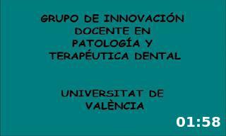 Acceso endodóncico al incisvio lateral maxilar