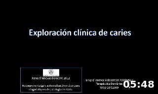 Exploarción clínica de caries