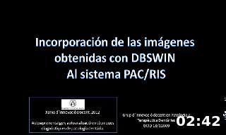 Incorporación de las imágenes  obtenidas con DBSWIN  Al sistema PAC/RIS