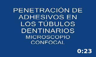 Penetración de adhesivo en los túbulos dentinarios