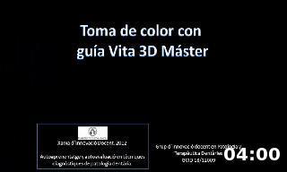 Toma de color con  guía Vita 3D Máster