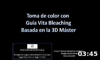 Toma de color con  Guía Vita Bleaching Basada en la 3D Máster